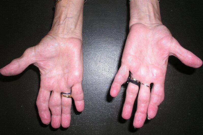 diagnostic syndrome canal carpien - probleme tunnel carpien - doigt a ressaut canal carpien - canal carpien doigt gonflé