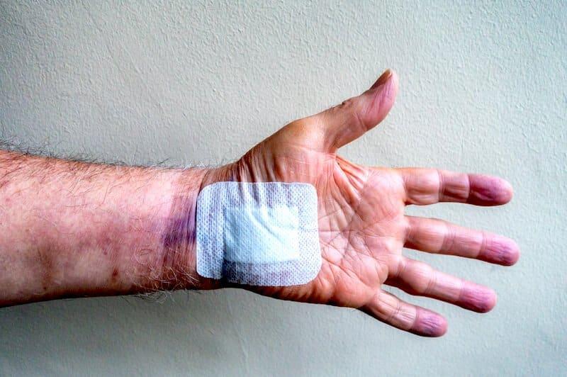 oedeme apres operation canal carpien - hématome post opératoire canal carpien - douleur main gonflée après opération du canal carpien