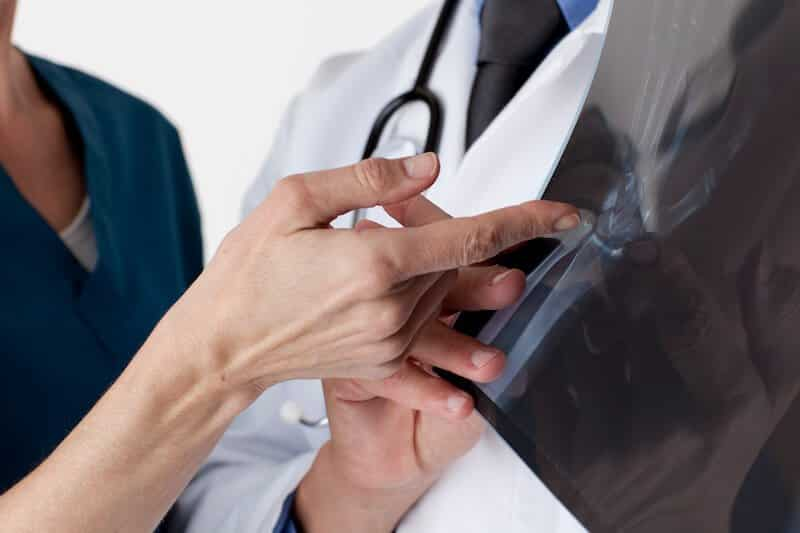 examen du canal carpien radiographie - radio canal carpien