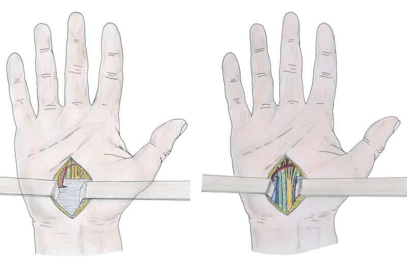 operation canal carpien ciel ouvert - dessin chirurgien de la main Paris Eric Roulot