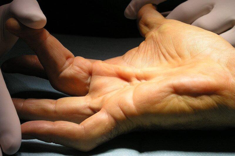 syndrome canal carpien diagnostic - maladie de dupuytrens canal carpien - canal carpien doigt bloqué - nodule dans la paume de la main