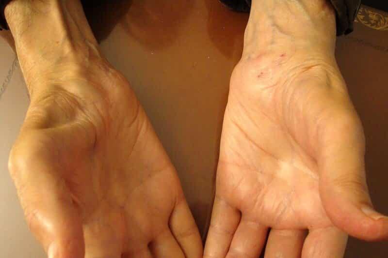 syndrome carpien poignet - nerf carpien poignet - nerf median canal carpien - atteinte du nerf median sensitif