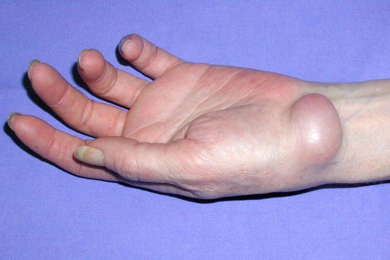 canal carpien causes - cause du canal carpien - kyste carpien - kyste au poignet gauche - kyste palmaire