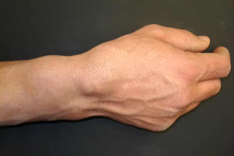 symptome canal carpien severe - pathologie du canal carpien - canal carpien et polyarthrite rhumatoide - boule poignet canal carpien - canal carpien gonflement main