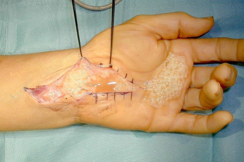symptome canal carpien severe - pathologie du canal carpien - canal carpien et polyarthrite rhumatoide - operation canal carpien ciel ouvert - synovectomie des fléchisseurs