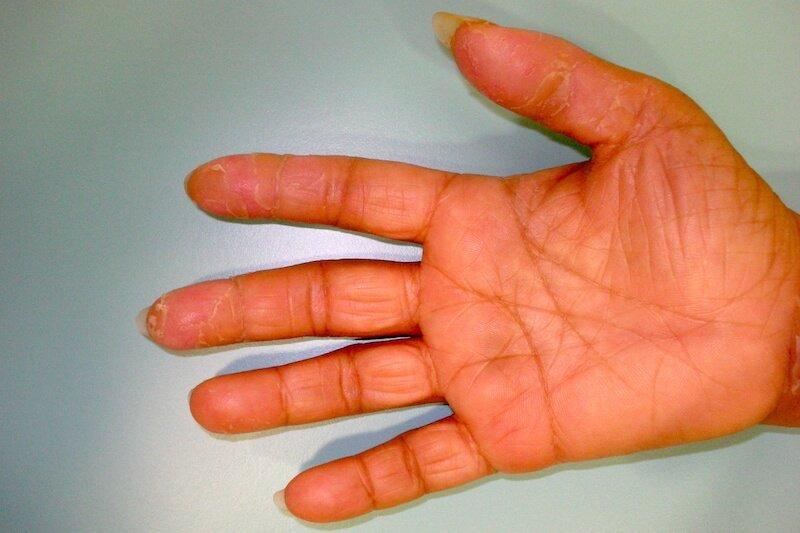 symptome canal carpien severe - symptomes canal carpien doigts - cause crevasse main - ongles striés et cassants causes