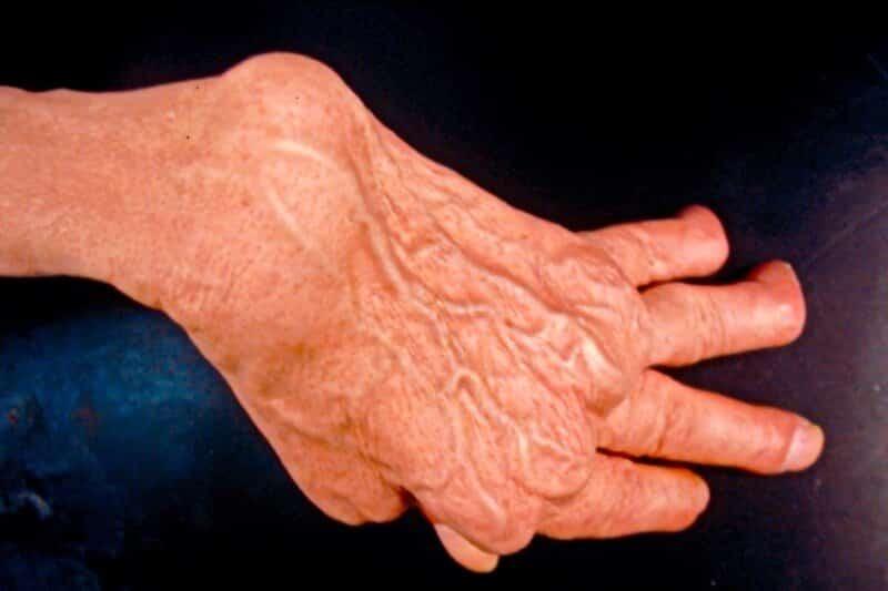 canal carpien causes - cause syndrome canal carpien - canal carpien et polyarthrite rhumatoide - maladie de la main canal carpien