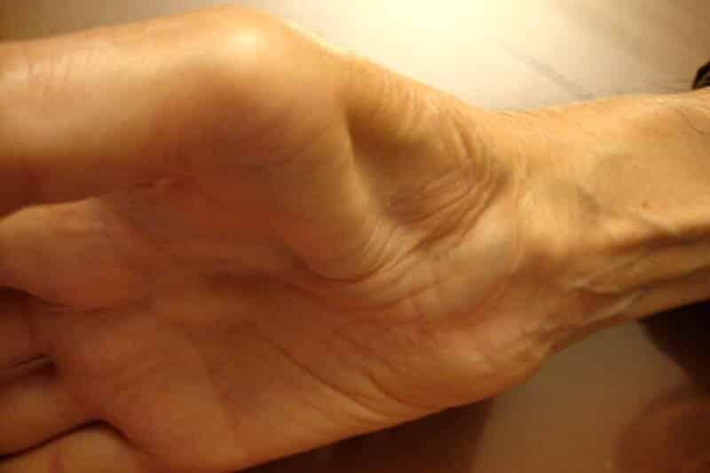 nerf carpien traitement - canal carpien paralysie main - perte sensation bout des doigts - perte de sensation dans les mains
