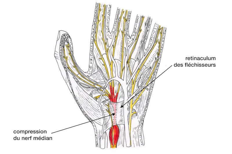 04 - syndrome canal carpien main gauche - compression nerf median poignet - inflammation canal carpien - probleme tunnel carpien