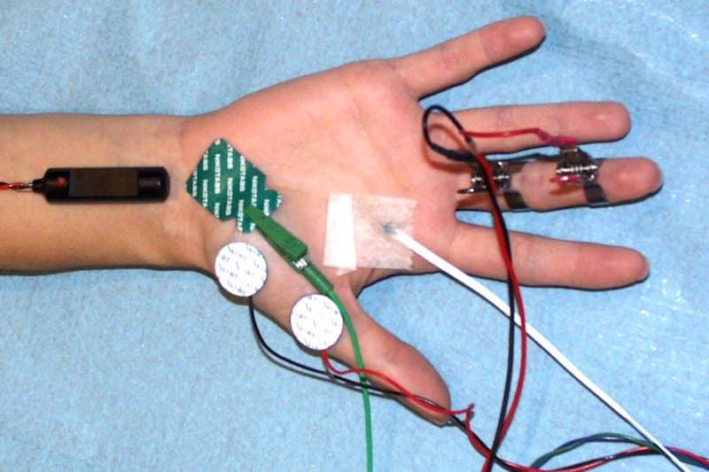 emg examen clinique paris - électrodes pour electromyogramme